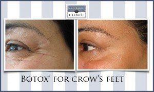 , Botox