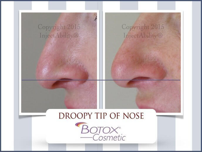 10droopy-tip-of-nose